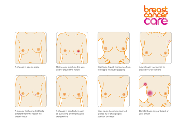 Breast signs all together 2016
